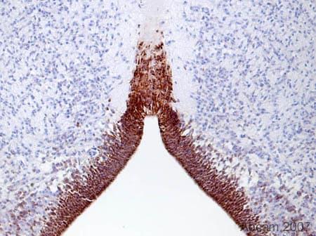 Immunohistochemistry (Formalin/PFA-fixed paraffin-embedded sections) - Anti-Musashi 1 / Msi1 antibody [EP1302] - BSA and Azide free (ab221797)