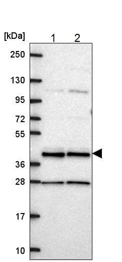 Western blot - Anti-CCDC84 antibody (ab221858)