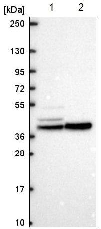 Western blot - Anti-KCNJ14  antibody (ab221889)