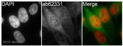 Immunocytochemistry/ Immunofluorescence - Anti-COX2 / Cyclooxygenase 2 antibody [EP1978Y] - BSA and Azide free (ab221924)