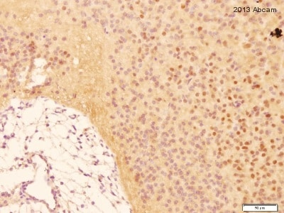 Immunohistochemistry (Formalin/PFA-fixed paraffin-embedded sections) - Anti-COX2 / Cyclooxygenase 2 antibody [EP1978Y] - BSA and Azide free (ab221924)