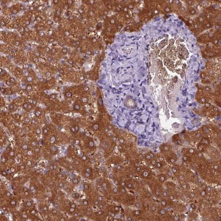 Immunohistochemistry (Formalin/PFA-fixed paraffin-embedded sections) - Anti-Aspartate Aminotransferase antibody (ab221939)