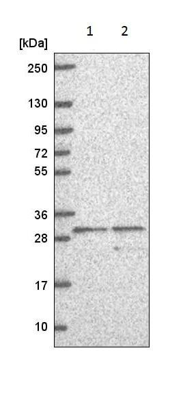 Western blot - Anti-Adenine Nucleotide Translocase 1/ANT 1 antibody (ab221956)