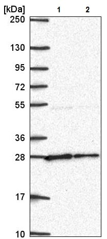 Western blot - Anti-NUDT21/CFIM25 antibody (ab221994)