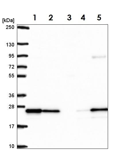 Western blot - Anti-RAB8B antibody (ab222017)