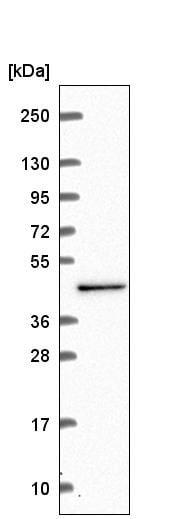Western blot - Anti-CWC27 antibody (ab222022)