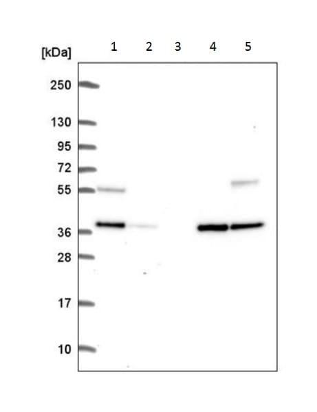 Western blot - Anti-C9orf64 antibody (ab222034)