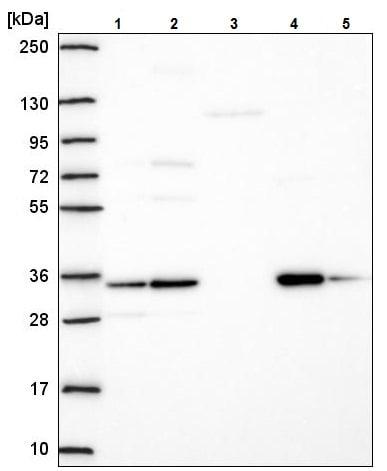 Western blot - Anti-TMEM183A antibody (ab222069)