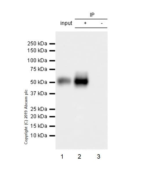 Immunoprecipitation - Anti-MICA + MICB antibody [EPR22071-91] (ab222098)