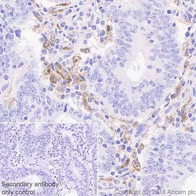 Immunohistochemistry (Formalin/PFA-fixed paraffin-embedded sections) - Anti-GPNMB antibody [EPR22011-11] (ab222109)