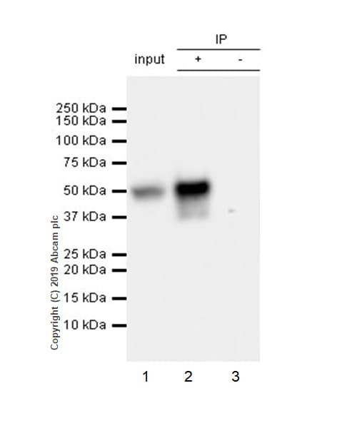 Immunoprecipitation - Anti-D Box Binding Protein antibody [EPR22370-51] (ab222112)