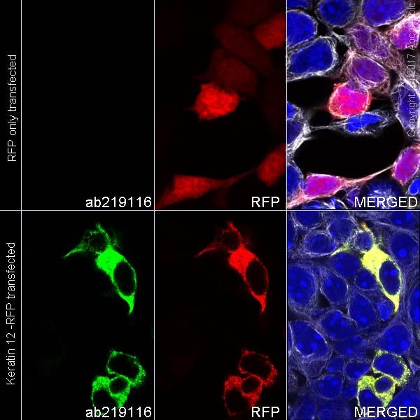 Immunocytochemistry/ Immunofluorescence - Anti-Keratin 12/K12 antibody [EPR17882] (Alexa Fluor® 488) (ab222116)