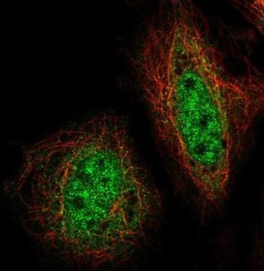 Immunocytochemistry/ Immunofluorescence - Anti-ZNF34 antibody (ab222144)