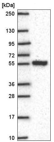 Western blot - Anti-SLC25A46/TB1 antibody (ab222197)