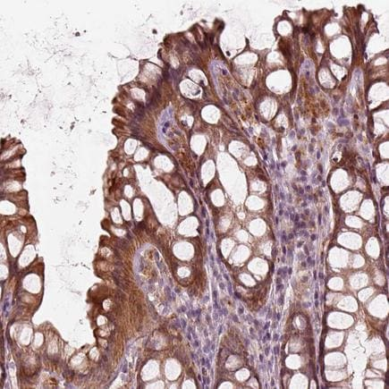 Immunohistochemistry (Formalin/PFA-fixed paraffin-embedded sections) - Anti-SLC25A46/TB1 antibody (ab222197)