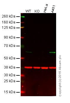 Western blot - Anti-Src antibody [EGTR103] - BSA and Azide free (ab222221)