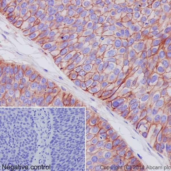 Immunohistochemistry (Formalin/PFA-fixed paraffin-embedded sections) - Anti-Integrin alpha V antibody [EPR16800] - Low endotoxin, Azide free (ab222222)