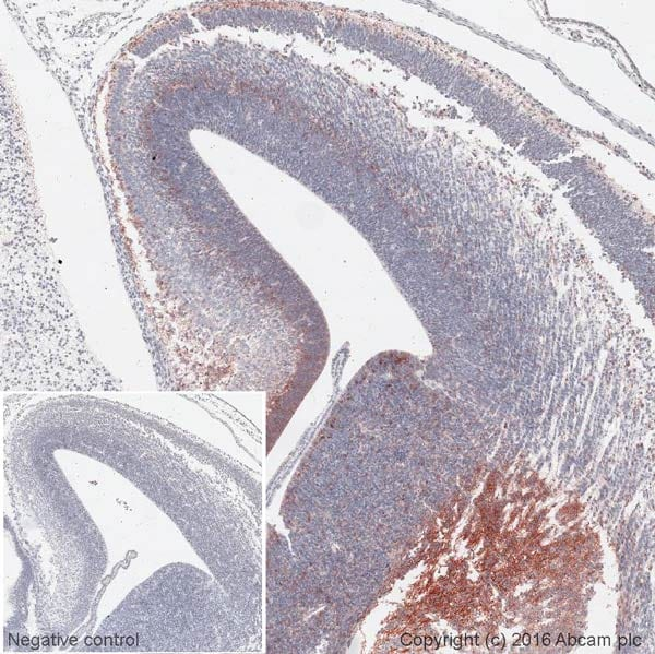 Immunohistochemistry (Formalin/PFA-fixed paraffin-embedded sections) - Anti-CXCR4 antibody [EPUMBR3] - Low endotoxin, Azide free (ab222223)