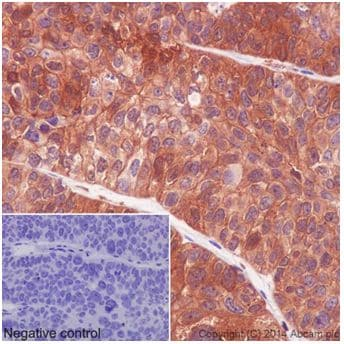 Immunohistochemistry (Formalin/PFA-fixed paraffin-embedded sections) - Anti-PKC delta antibody [EPR17075] - BSA and Azide free (ab222229)