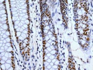 Immunohistochemistry (Formalin/PFA-fixed paraffin-embedded sections) - Anti-53BP1 antibody [EPR2172(2)] - BSA and Azide free (ab222232)