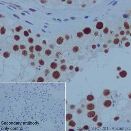 Immunohistochemistry (Formalin/PFA-fixed paraffin-embedded sections) - Anti-PARP1 antibody [EPR18461] - BSA and Azide free (ab222234)