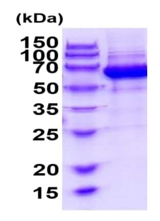 SDS-PAGE - Recombinant Mouse Eph receptor B4/HTK protein (ab222345)