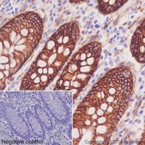 Immunohistochemistry (Formalin/PFA-fixed paraffin-embedded sections) - Anti-Integrin alpha 2 antibody [EPR17338] - Low endotoxin, Azide free (ab222377)