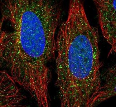 Immunocytochemistry/ Immunofluorescence - Anti-ADAMTS7 antibody (ab222383)