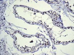 Immunohistochemistry (Formalin/PFA-fixed paraffin-embedded sections) - Anti-BRD2 antibody [EPR7642] - BSA and Azide free (ab222393)
