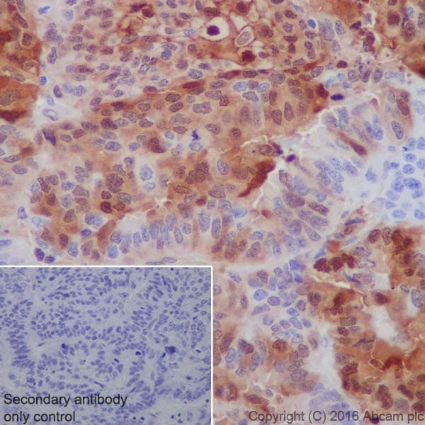 Immunohistochemistry (Formalin/PFA-fixed paraffin-embedded sections) - Anti-Annexin A1/ANXA1 antibody [EPR19342] - BSA and Azide free (ab222398)