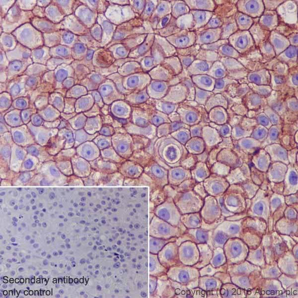 Immunohistochemistry (Formalin/PFA-fixed paraffin-embedded sections) - Anti-ErbB 2 antibody [EPR19547-12] - BSA and Azide free (ab222482)