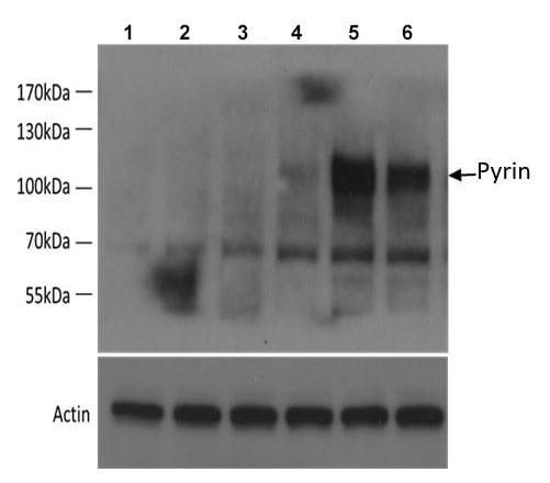 Western blot - Anti-Pyrin antibody [EPR18676] - BSA and Azide free (ab222484)
