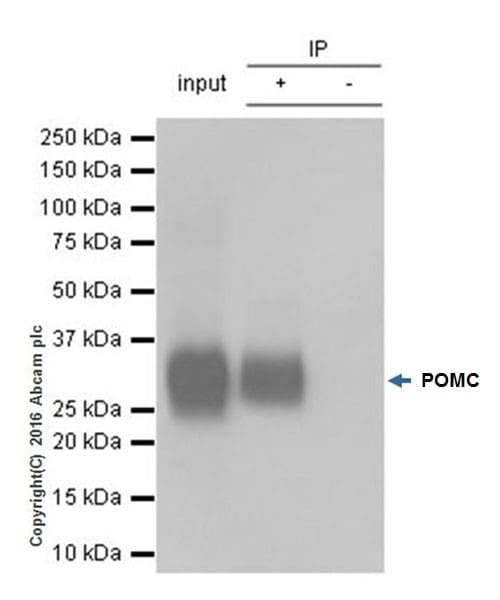 Immunoprecipitation - Anti-POMC antibody [EPR17571] - BSA and Azide free (ab222486)