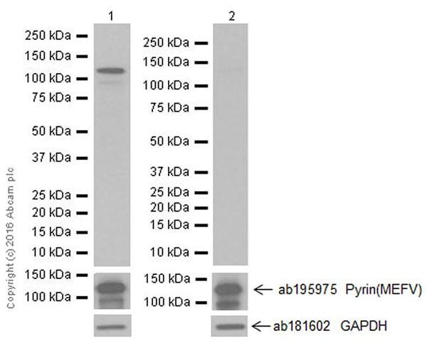 Western blot - Anti-Pyrin (phospho S205) antibody [EPR19567] - BSA and Azide free (ab222490)