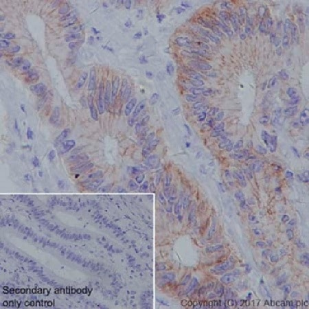 Immunohistochemistry (Formalin/PFA-fixed paraffin-embedded sections) - Anti-Claudin18.2 antibody [EPR19202] (ab222512)