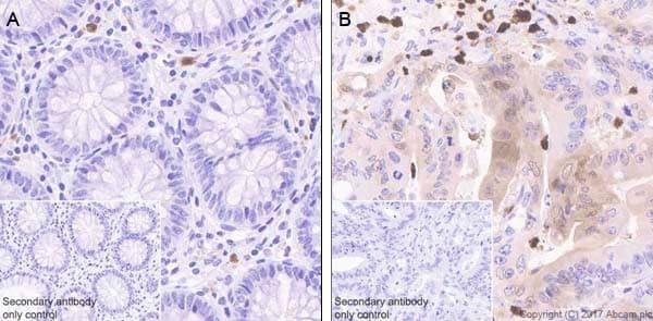 Immunohistochemistry (Formalin/PFA-fixed paraffin-embedded sections) - Anti-CDA antibody [EPR20525] (ab222515)