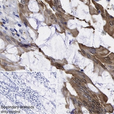 Immunohistochemistry (Formalin/PFA-fixed paraffin-embedded sections) - Anti-liver FABP antibody [EPR20464] (ab222517)