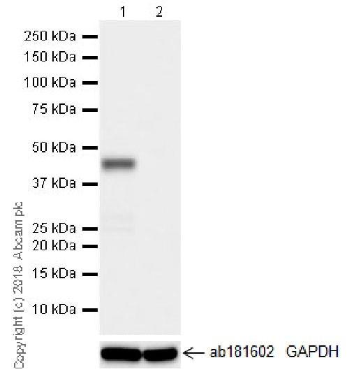 Western blot - Anti-SNF5/SMARCB1 antibody [EPR20189] (ab222519)