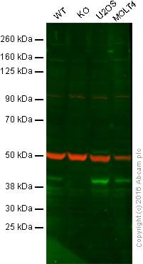 Western blot - Anti-Bmi1 antibody [LLBmi1-1] - BSA and Azide free (ab222600)
