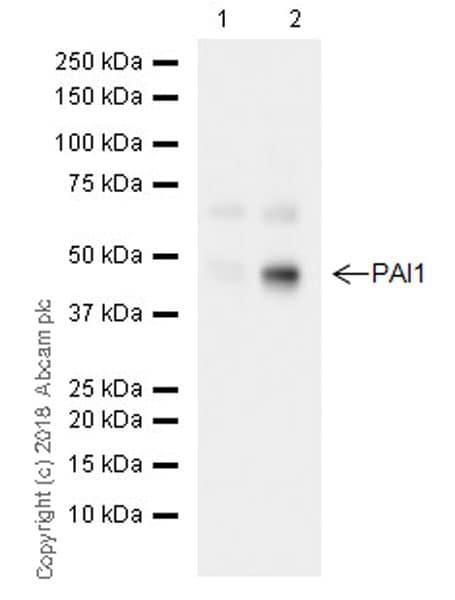 Western blot - Anti-PAI1 antibody [EPR21850-82] (ab222754)