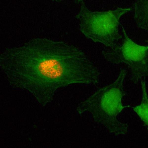 Immunocytochemistry/ Immunofluorescence - Anti-Histone H2A (phospho S1) + Histone H4 (phospho S1) antibody [RM216] (ab222765)