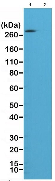 Western blot - Anti-Acetyl Coenzyme A Carboxylase (phospho S79) antibody [RM270] (ab222774)