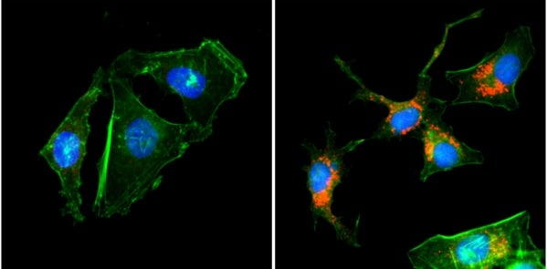 Immunocytochemistry/ Immunofluorescence - Anti-LC3B antibody [RM293] (ab222776)