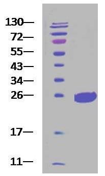 SDS-PAGE - Recombinant Rat SOD2/MnSOD protein (His tag) (ab222787)