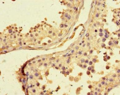 Immunohistochemistry (Formalin/PFA-fixed paraffin-embedded sections) - Anti-U2AF1RS1 antibody (ab222795)