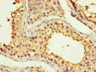 Immunohistochemistry (Formalin/PFA-fixed paraffin-embedded sections) - Anti-FMNL3 antibody (ab222797)