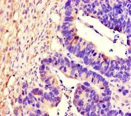 Immunohistochemistry (Formalin/PFA-fixed paraffin-embedded sections) - Anti-PTPRS antibody (ab222798)