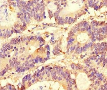 Immunohistochemistry (Formalin/PFA-fixed paraffin-embedded sections) - Anti-SLC37A1 antibody (ab222800)
