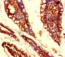 Immunohistochemistry (Formalin/PFA-fixed paraffin-embedded sections) - Anti-MED31 antibody (ab222802)