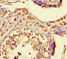 Immunohistochemistry (Formalin/PFA-fixed paraffin-embedded sections) - Anti-ZNF408 antibody (ab222803)